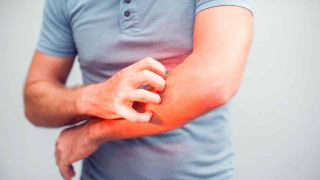 People with diabetes often have a skin rash